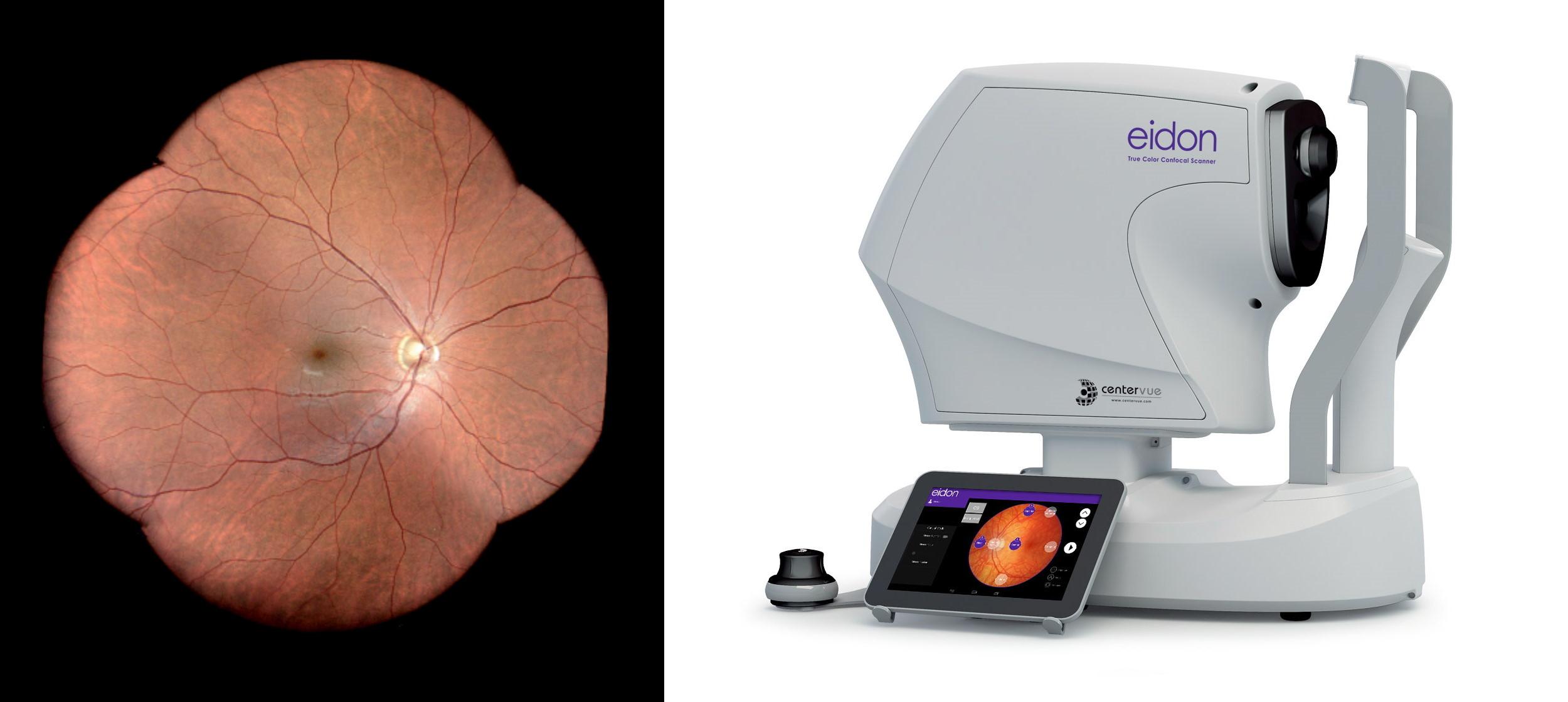iCare Eidon silmänpohjakamera.