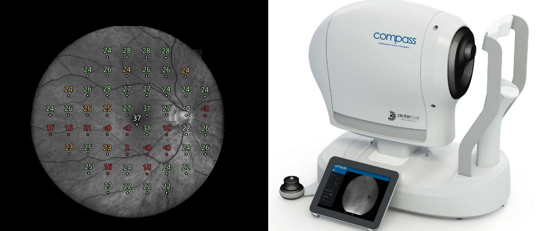 CenterVue COMPASS, yhdistetty Perimetri ja Silmänpohjakamera.